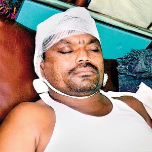 Maharashtra: Dalit sarpanch battles for life after